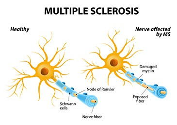 Comparison between healthy nerve and with Multiple sclerosis